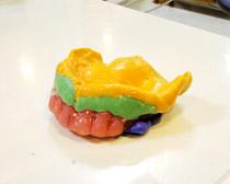 診断用義歯